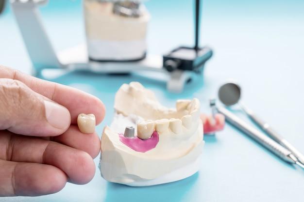 Protetyka na implantach lub protetyka