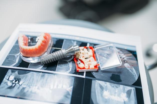 Protezy i szpilki na stole, protezy zębowe