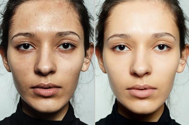 Przed i po zabiegu kosmetycznym