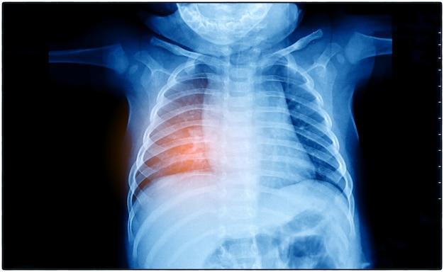 Prześwietlenie klatki piersiowej pacjenta wykazującego pierwotnego raka płuca w prawym i lewym płacie płuca. ciemne tło z czerwonym podświetleniem skupia się na guzie.