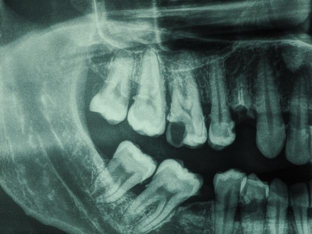 Prześwietlenie ludzkich zębów