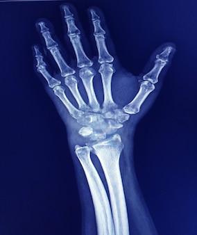 Prześwietlenie nadgarstka ukazujące ciężkie zapalenie stawów nadgarstka lub nadgarstka i wyraźną deformację kciuka.