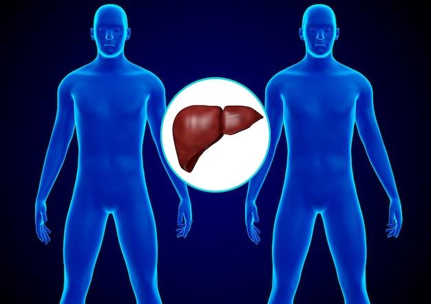 Przeszczep wątroby ludzkiej. zastąpienie chorej wątroby zdrową wątrobą dawcy. renderowanie 3d