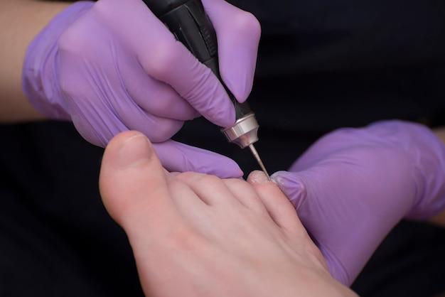 Przetwarzanie paznokci u stóp, pedicure. dłonie w rękawiczkach z nożem do pedicure. zbliżenie