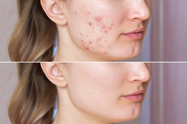 Przycięte ujęcie twarzy młodej kobiety przed i po leczeniu trądziku na twarzy. z