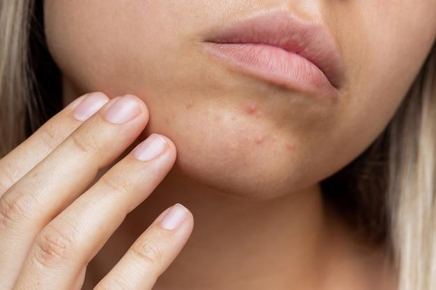 Przycięte zdjęcie młodej kobiety z problemem trądziku pryszcze na brodzie wysypka alergiczna