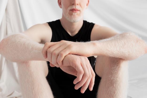 Przystojny mężczyzna albinos pozuje