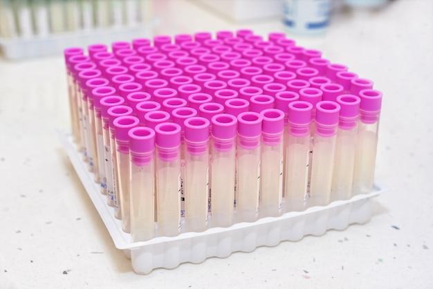 Pusta próbna krwi tubka w laboratorium