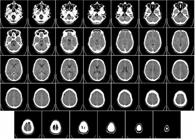 Radiografia ray tomografia komputerowa mózgu ct