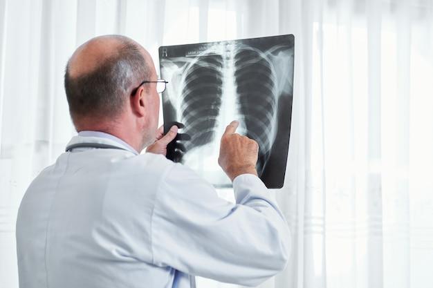 Radiolog badający prześwietlenie płuc