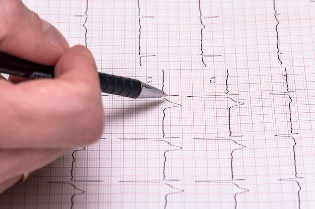 Raport z wykresu papierowego ekg, elektrokardiogram na formularzu papierowym jako tło