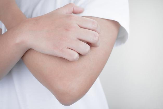 Ręce drapiące ramiona od swędzenia