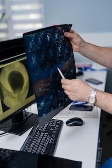 Ręce lekarza z tomografią komputerową. tło pokój medyczny.