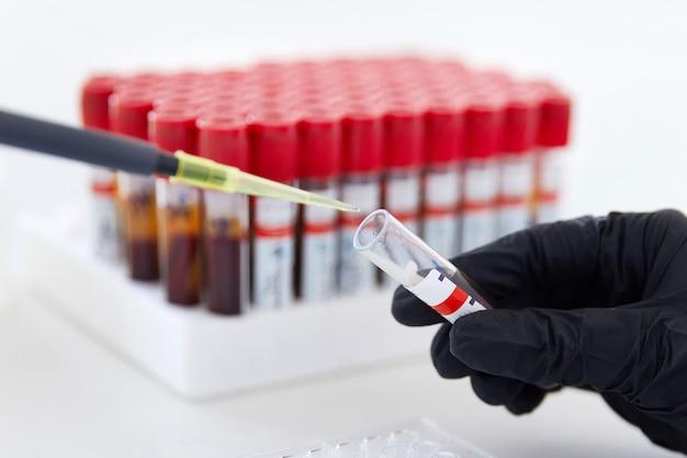 Ręce technika laboratoryjnego z probówką z próbką krwi i stojakiem z innymi próbkami
