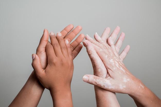 Ręce z problemem skóry bielactwa