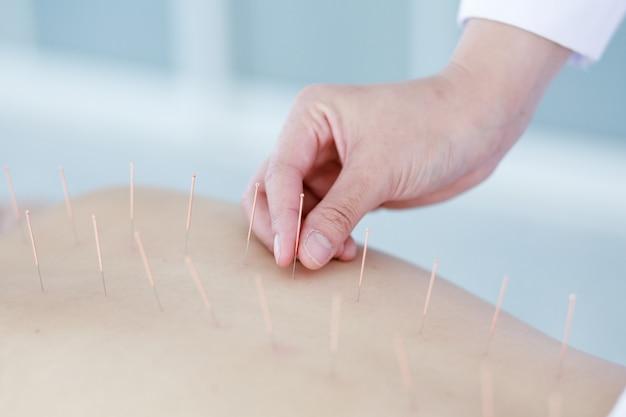 Ręka doktorska wykonuje terapia akupunktury. azjatycka kobieta poddawana zabiegowi akupunktury za pomocą linii cienkich igieł wprowadzonych w skórę jej ciała w szpitalu klinicznym