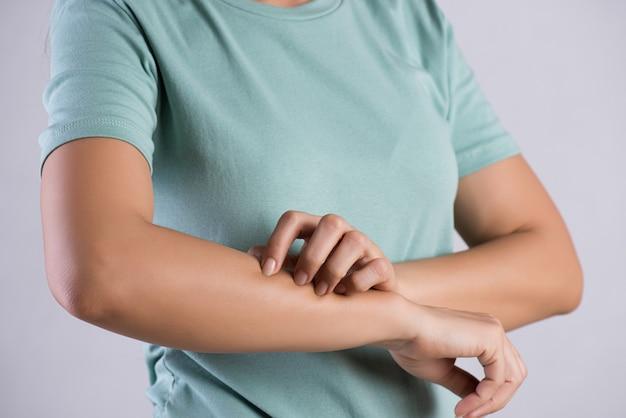 Ręka kobiety drapie swędzenie ręką w domu. opieka zdrowotna i medyczna.