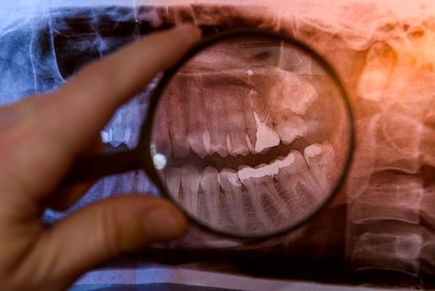 Ręka lekarza z prześwietleniem zębów z bliska