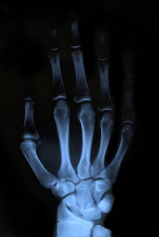 Ręka rentgenowska