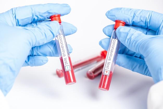 Ręka trzyma probówki koronawirusa z krwią na białym tle