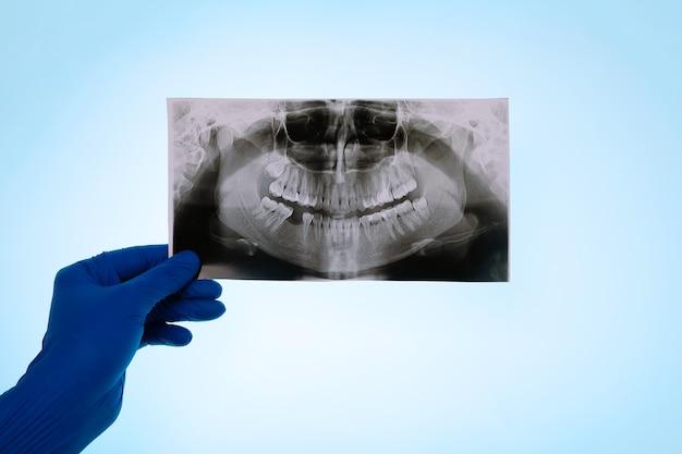 Ręka w rękawiczce trzymająca migawkę ząb pacjenta na niebieskim tle, lekarz analizuje miejsce na implant dentystyczny
