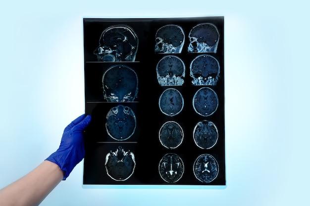 Ręka w rękawiczce trzymająca skan mózgu mri lub wyniki rezonansu magnetycznego, koncepcja neurologii, lekarz analizuje migawkę na niebieskim tle