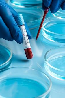 Ręka w rękawiczkach ochronnych z próbkami krwi do testu na obecność wirusa covid na płytkach petriego