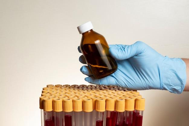 Ręka z ochronną rękawicą nitrylową do trzymania probówki w laboratorium.