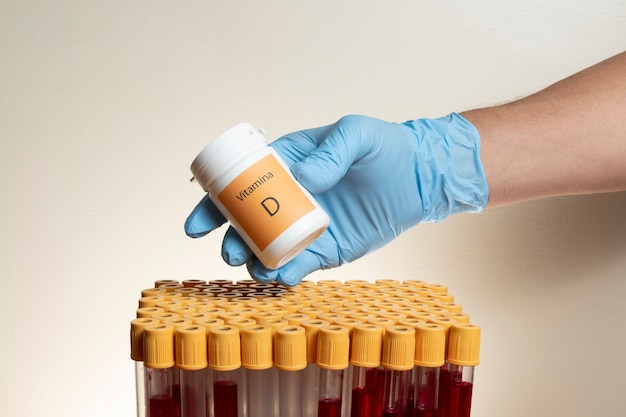 Ręka z ochronną rękawicą nitrylową zawierająca lekarstwo z probówkami do pobierania krwi.