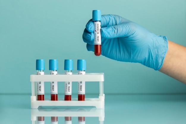 Ręka z rękawicami ochronnymi zawierająca próbki krwi do testu covid