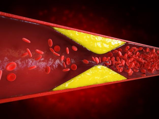 Rendering 3d miażdżycy z krwią cholesterolową lub blaszką miażdżycową w naczyniu powodującym chorobę wieńcową
