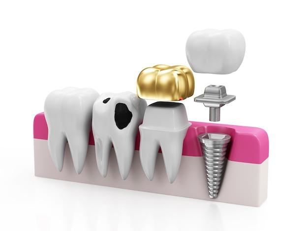Różne rodzaje zębów na białym tle