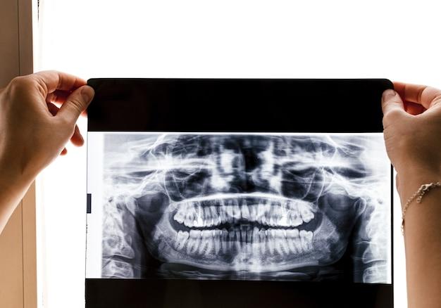 Rtg pełnego zestawu zębów. koncepcja rentgenowska.