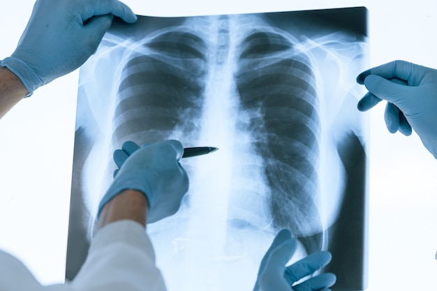 Ścieśniać. koledzy lekarze omawiający prześwietlenie płuc. pojęcie ochrony zdrowia.