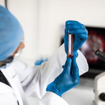 Ścieśniać. probówka z przebadanym testem w rękach wirusologa. zdjęcie z miejscem na kopię.