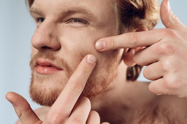 Ścieśniać. rudowłosy młody człowiek wycisnąć pryszcz