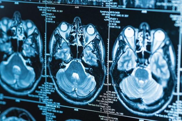 Seria obrazów rezonansu magnetycznego mózgu, diagnostyczne, zbliżenie