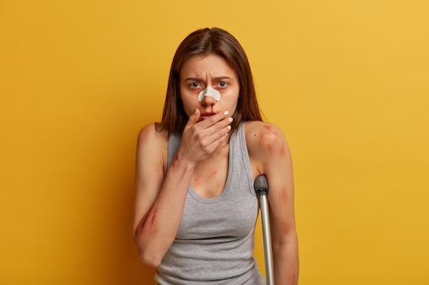 Sfrustrowana rozczarowana kobieta ma krwawiący nos po poślizgnięciu się na lodzie, złamaną nogą