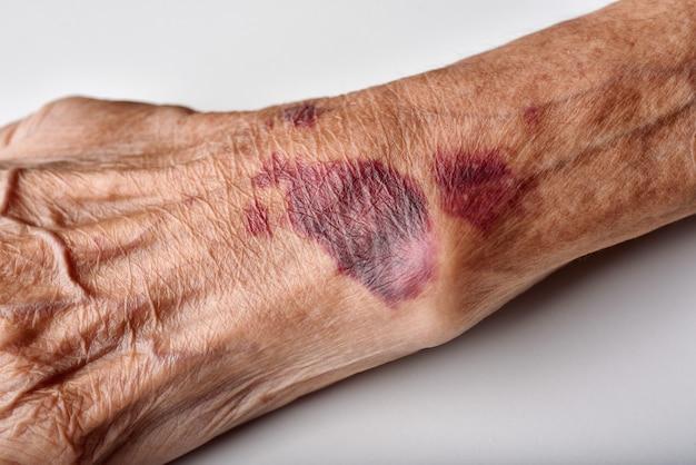 Siniak rany na starszych osobach.