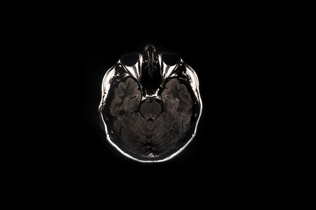 Skan mózgu, obrazowanie mózgu na zdjęciu rentgenowskim