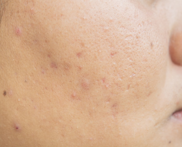 Skaza z trądziku na twarzy i problemy ze skórą i pory u nastolatków