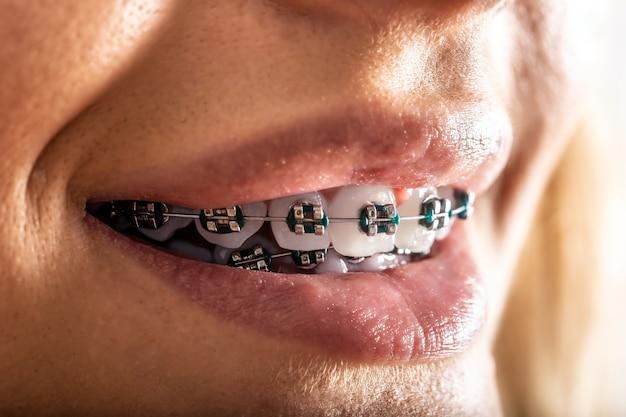 Skrajny szczegół zębów z aparatem ortodontycznym w ustach młodej kobiety.