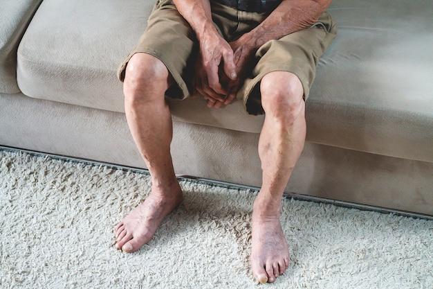 Smutny starszy senior siedzi na sofie. zbliżenie dłoni i stóp