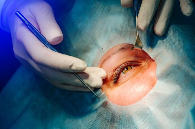 Specjalista medyczny wykonujący operację okulistyki. nowoczesny sprzęt. korekcja wzroku.