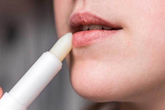 Spierzchnięte lub popękane, suche usta, które utraciły wilgoć.