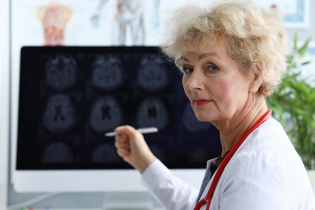 Starsza kobieta lekarz pokazuje pióro na zdjęciu rentgenowskim