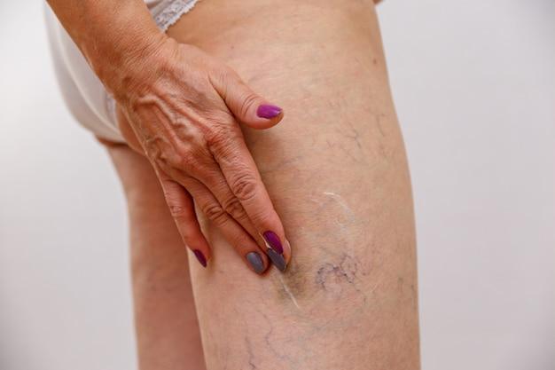 Starsza kobieta rozmazuje krem lub maść na nogę na jasnym tle.