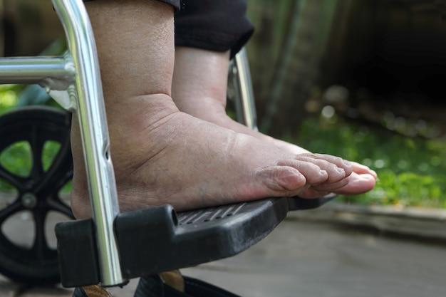 Starsza kobieta spuchnięte stopy test prasy na wózku inwalidzkim