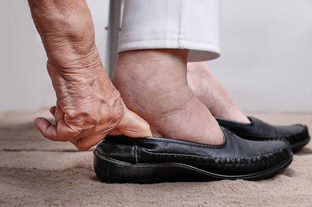 Starsza kobieta spuchnięte stopy zakładanie butów