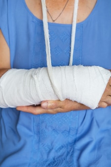 Starsza kobieta z przewiniętym ramieniem w gipsie i bandażu. cios, złamanie, kości, szpital.